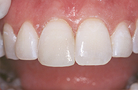 The dental bonding done on the chipped tooth is impossible to distinguish with the naked eye.