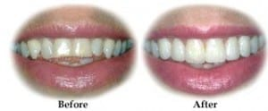 These images demonstrate results that are possible with porcelain veneers.