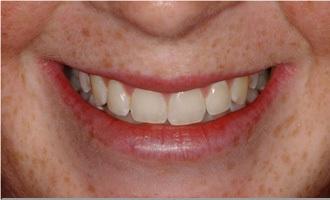 Smile before teeth whitening.