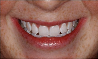Smile after use of at-home teeth whitening system.