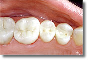 The same teeth, after replacing the amalgam fillings with composite white fillings