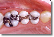 This patient had extensive amalgam fillings.