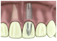 Diagram of dental implant root form with crown
