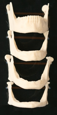 This graphic illustrates the gradual deterioration of jaw bones that lead to facial collapse.