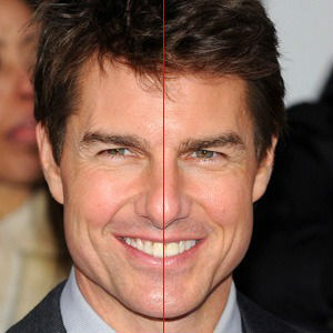 Tom Cruise porcelain veneers with centering line