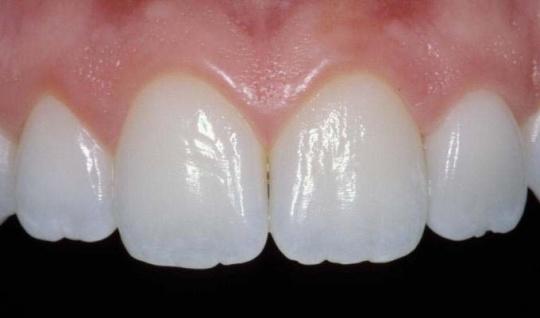 beautifully veneers teeth
